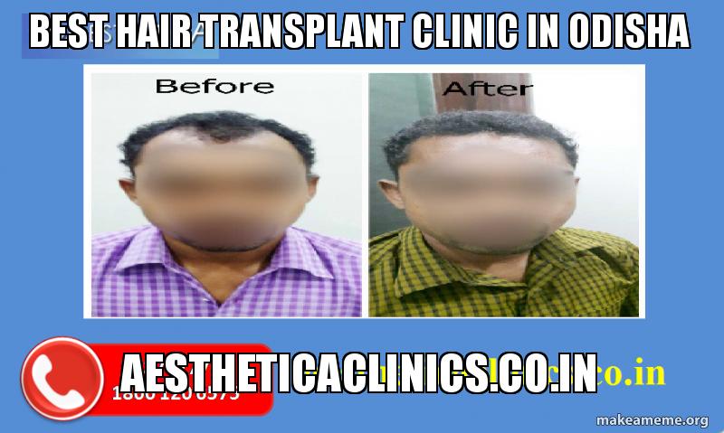 Best Hair Transplant Clinic in Odisha Aestheticaclinics co